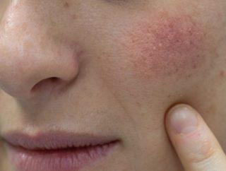 Jak rozpoznać łojotokowe zapalenie skóry?