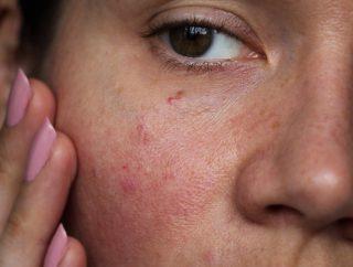 Łojotokowe zapalenie skóry – czy można mu zapobiegać?